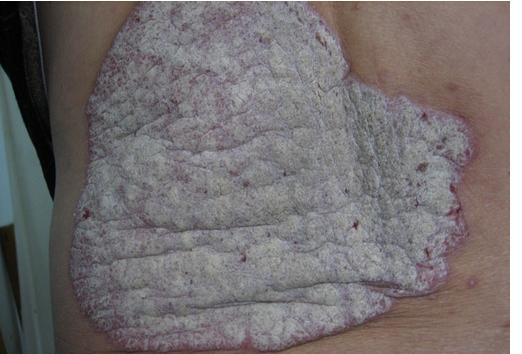牛皮癣增强免疫力的措施是什么呢